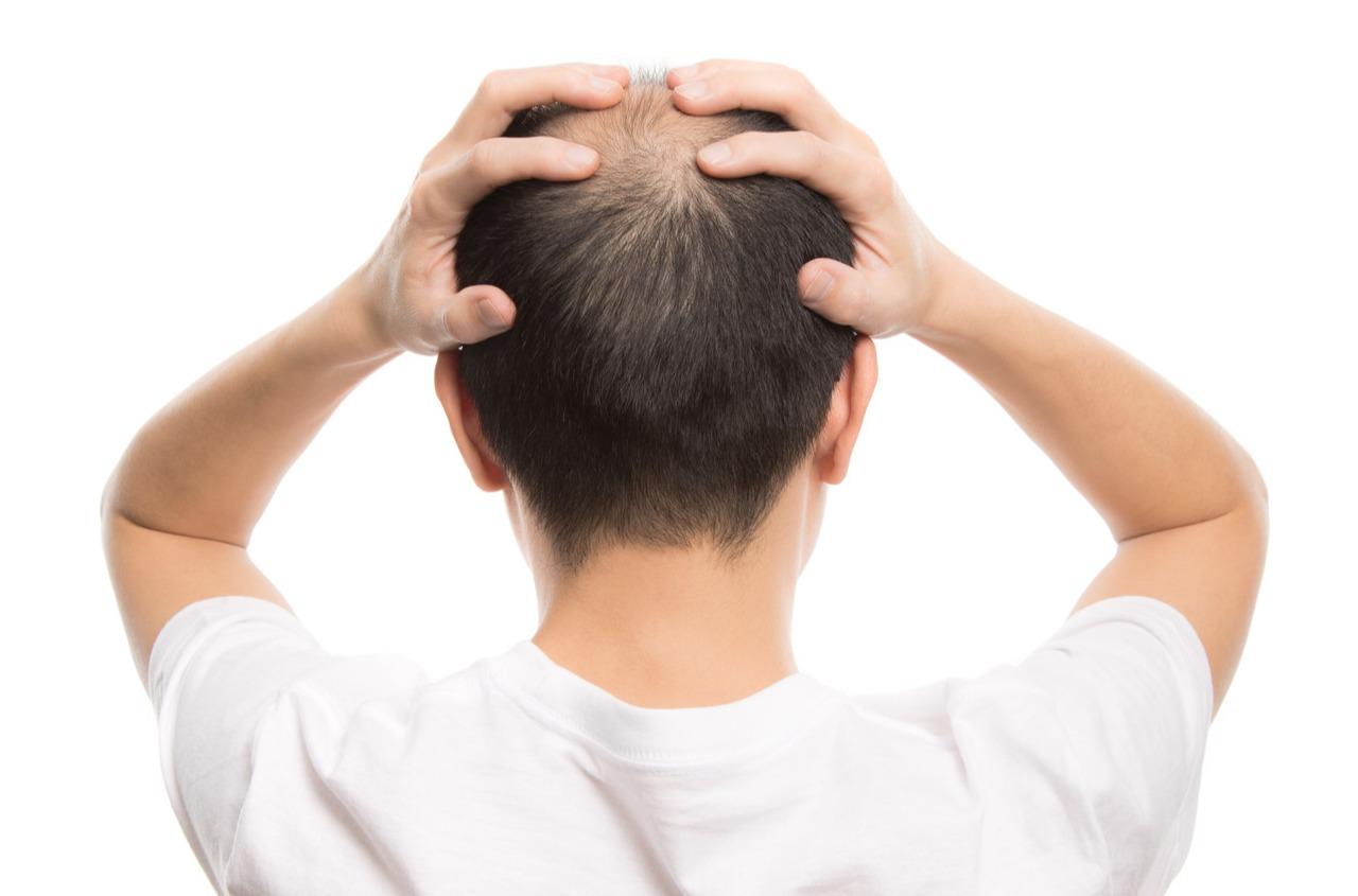 ~効果的な脱毛予防法~